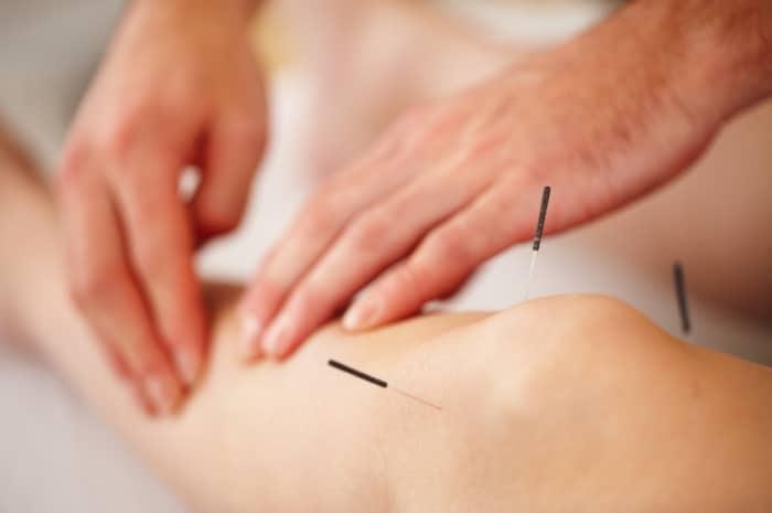 Acupuncture-